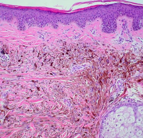 Imágen a microscópio, con agregados de melanocitos en dermis