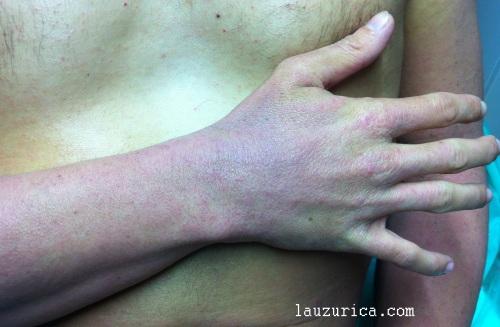 Aspecto liquenificado de la dermatitis atópica