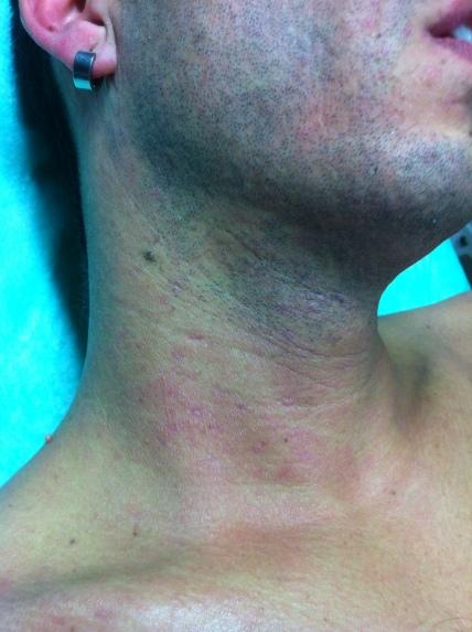 Desaparición de las lesiones con tratamiento antivírico