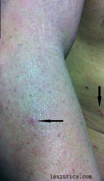 Lesiones aisladas en brazo y abdomen