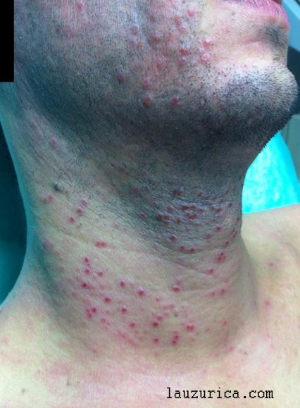 Fase costrosa a los 5 días, justo antes del tratamiento antivírico