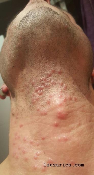 Pápulas vesiculosas en el inicio