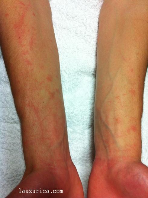 Lesiones lineales bilaterales típicas y palma afectada