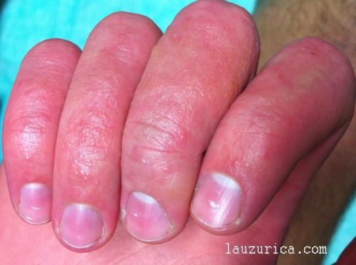 Gran afectación de dedos, con múltiples vesiculas