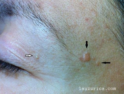 Quistes de milium (flecha blanca) e hiperplasias sebáceas (flechas negras)