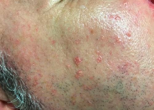 Hierplásia sebácea en la cara.