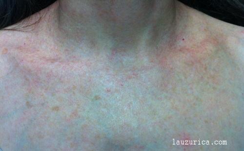 Rosácea en escote tras 2 sesiones de Luz Pulsada (SWT)