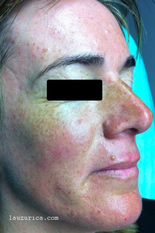 Gran mejoría a los 40 días de tratamiento con tetraciclinas orales e ivermectina tópica