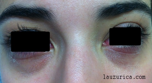 Afectación bilateral de ambos párpados inferiores