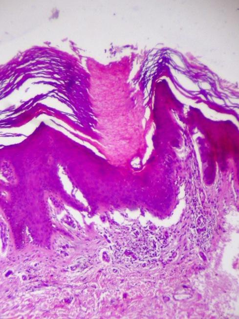 Lamella cornoide. Compactación de la capa córnea