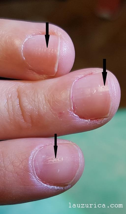 Pitting, hoyuelos en la lámina ungueal