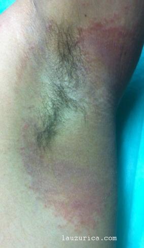 Psoriasis inversa, el paciente tiene afectadas las dos axilas por igual