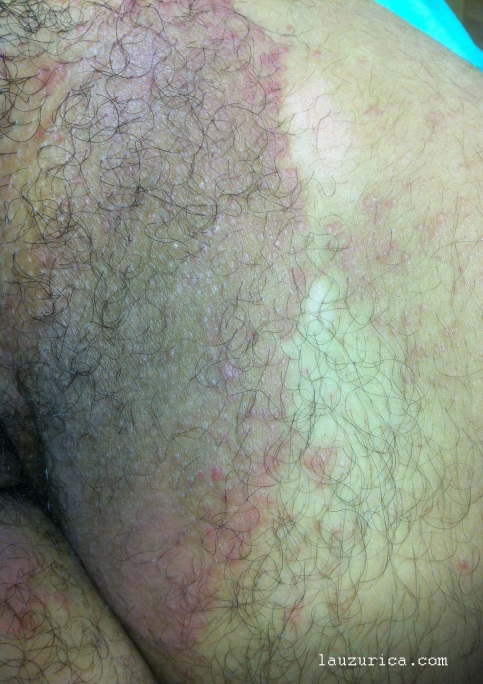 Psoriasis inversa, afectación de las dos ingles