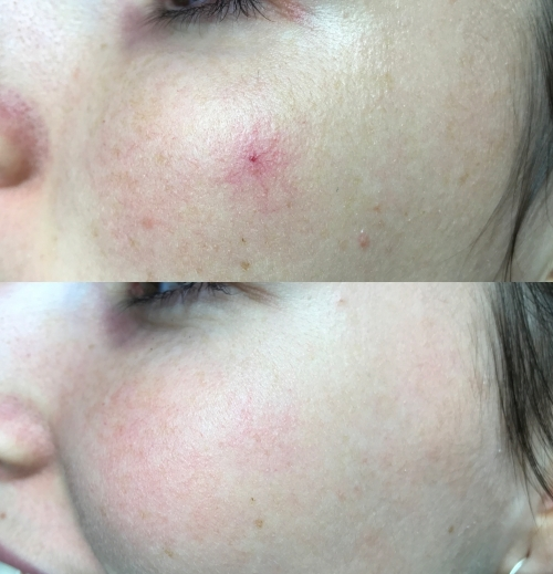Antes y 1 mes después de una sesión de Neodimio