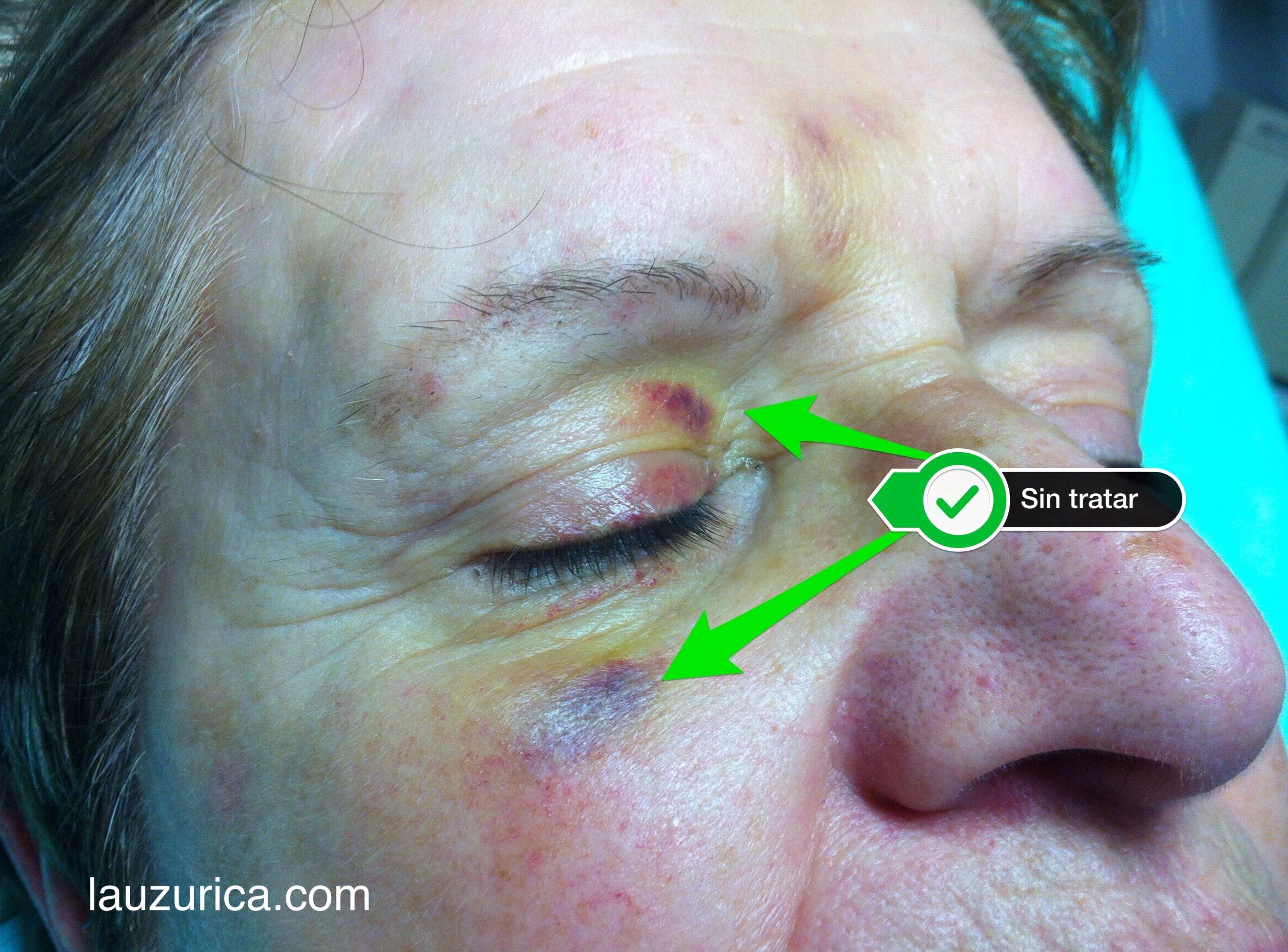 Como eliminar un morado de la piel