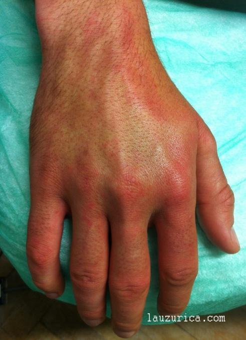 Eritema y edema en manos