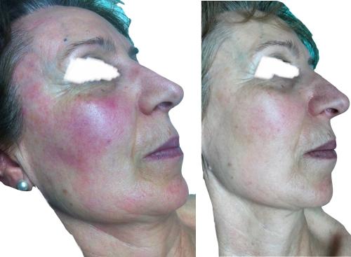 Rosácea con rojez difusa y Flushing 5 meses después de 4 sesiones de Luz Pulsada Intensa