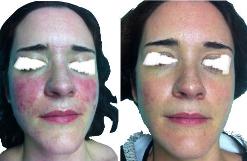 Rosácea con gran inflamación, 4 meses después de 3 sesiones de Luz Pulsada Intensa