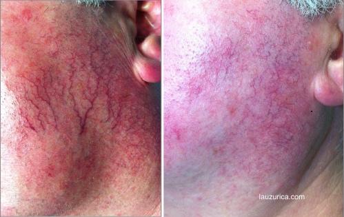 Grandes telangiectásias en paciente con rosácea